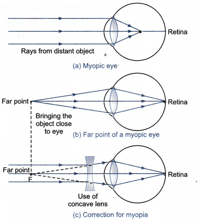 What Is Myopia State The Two Causes Of Myopia Class 10 Science