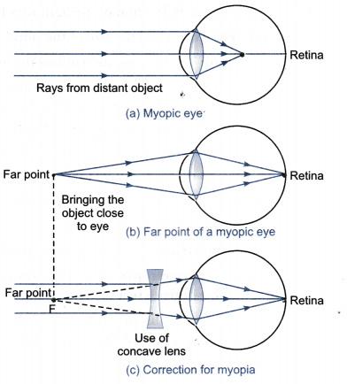 myopia eye diagram